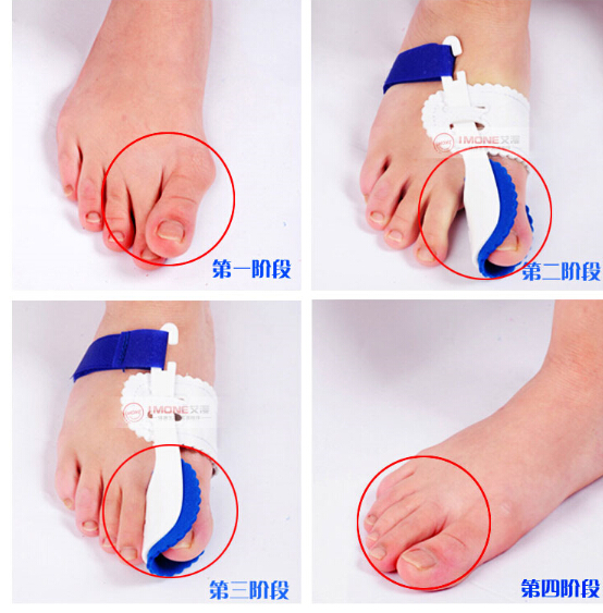 Professional foot orthotics toe separator corrector Hallux valgus Combination