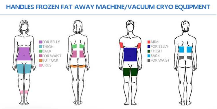 The Latest Technology Shock Wave Therapy Electroporation  fat freezing Cryotherapy Fat Reduction