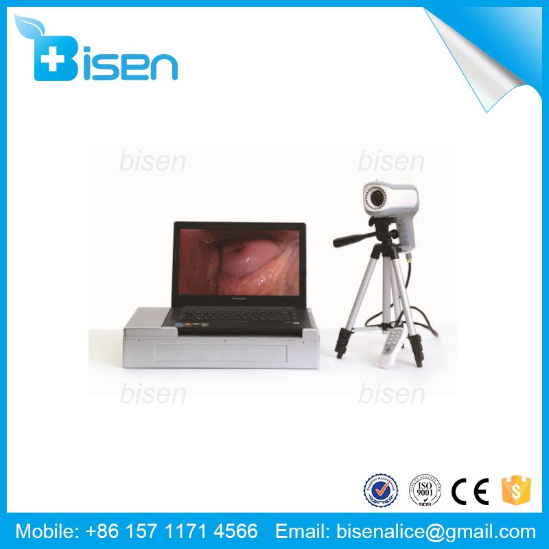 Free Software Electronic Gynecologic Exam Sale Digital Video Camera For Vagina Colposcope