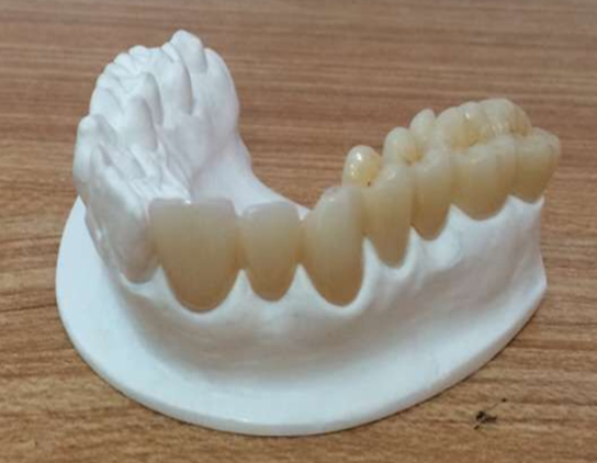 Aidite Ultra Translucent Zirconia At Multi Layer Unique