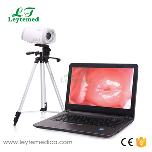 LTY9800 High Resolution Digital Electronic Video Colposcope