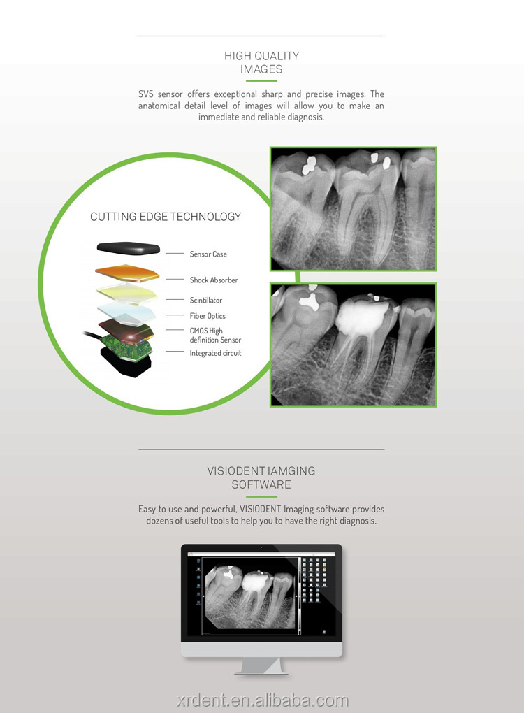 France CMOS Technology Digital Dental Xray Intraoral Sensor