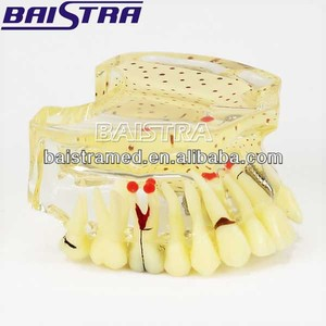 Hot selling tooth implant study practice teeth model