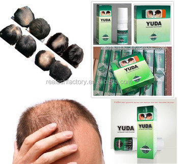 World Best Hair Growth Product.men Hair Regrowth Oil Hot Trending Hair Loss  Liquid