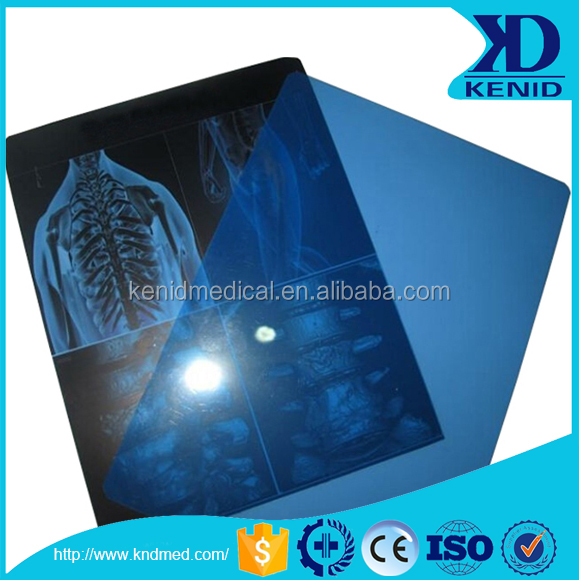 Medical x ray film/agfa x-ray film 11x14in prices