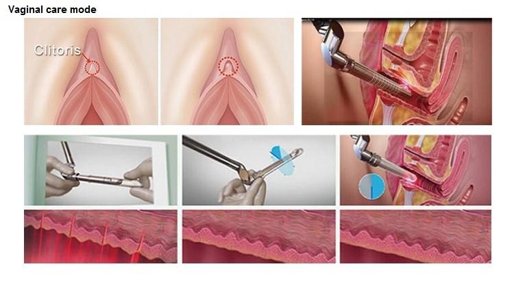 Vaginal Rejuvenation Treatment In Germantown Tn