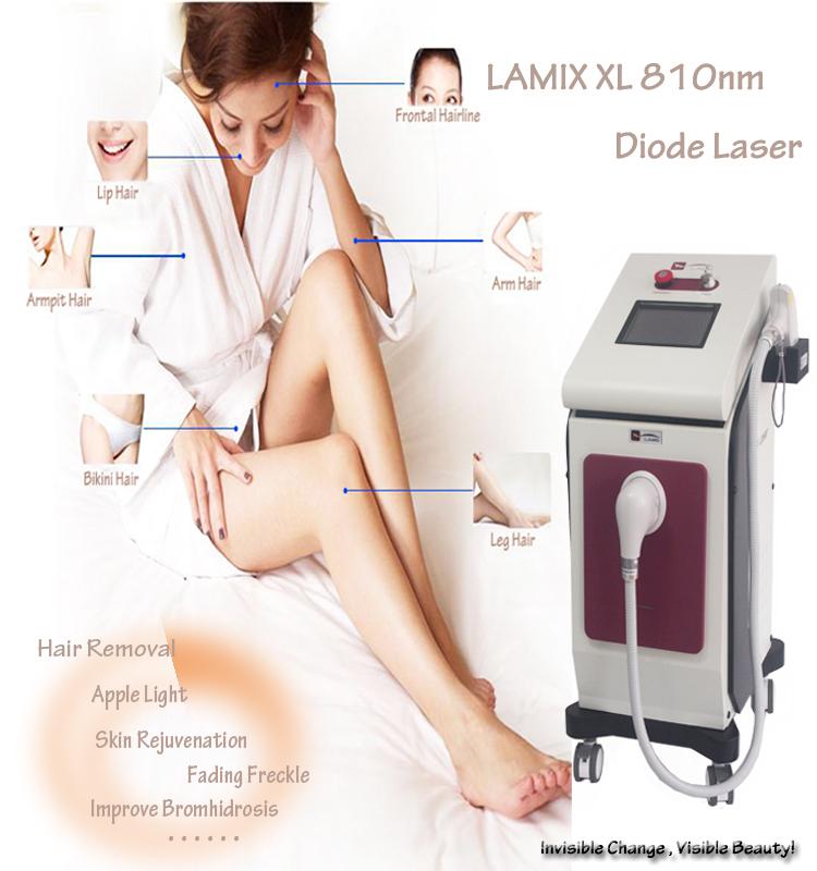Epilazione laser sul dispositivo soprano XL