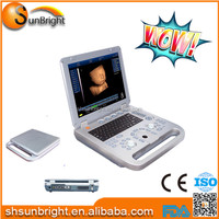 High performance Sun-800D laptop ultrasound machines for sale