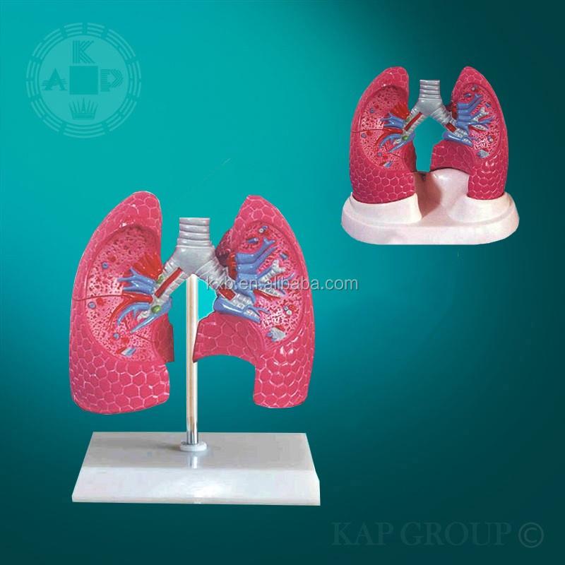 Artificial Educativos Anatomía Pulmonar Modelo/enfermedad Pulmonar ...