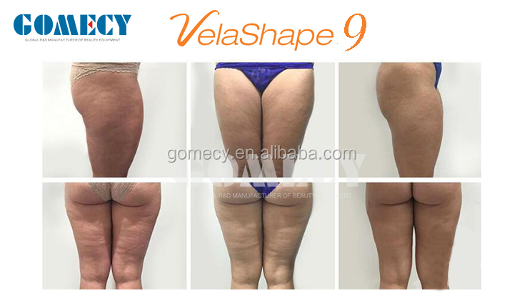 Vertical V Shape 3 Velashape III V9 III auto roller vacuum rf fat removal system for weight loss infrared LED light.jpg