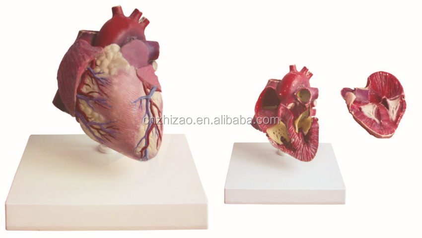 Human Heart Anatomical Model,Heart Coronary Arching Attach With Artery -  Buy Heart Anatomical Model,Human Heart Model,Plastic Heart Model Product on
