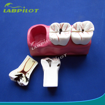 detachable dental caries development model decayed molar teeth model