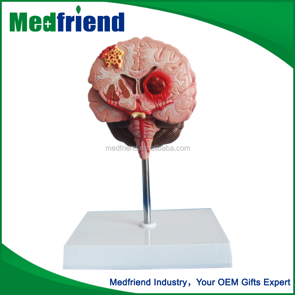 MFM003 Wholesale Products Brain Model 3D