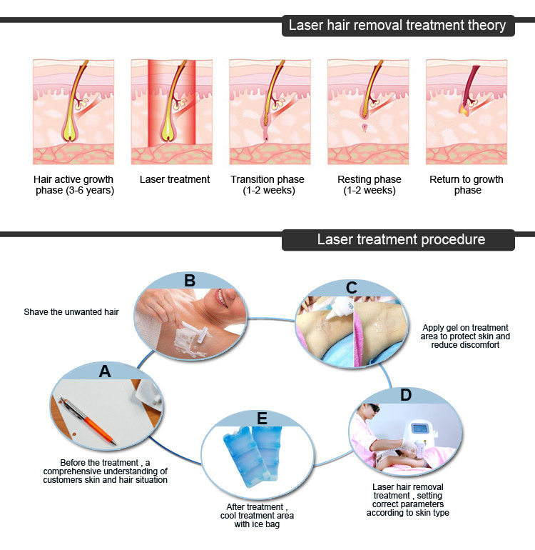 Professional laser hair removal machine price/808nm diode laser hair removal/soprano laser hair removal machine