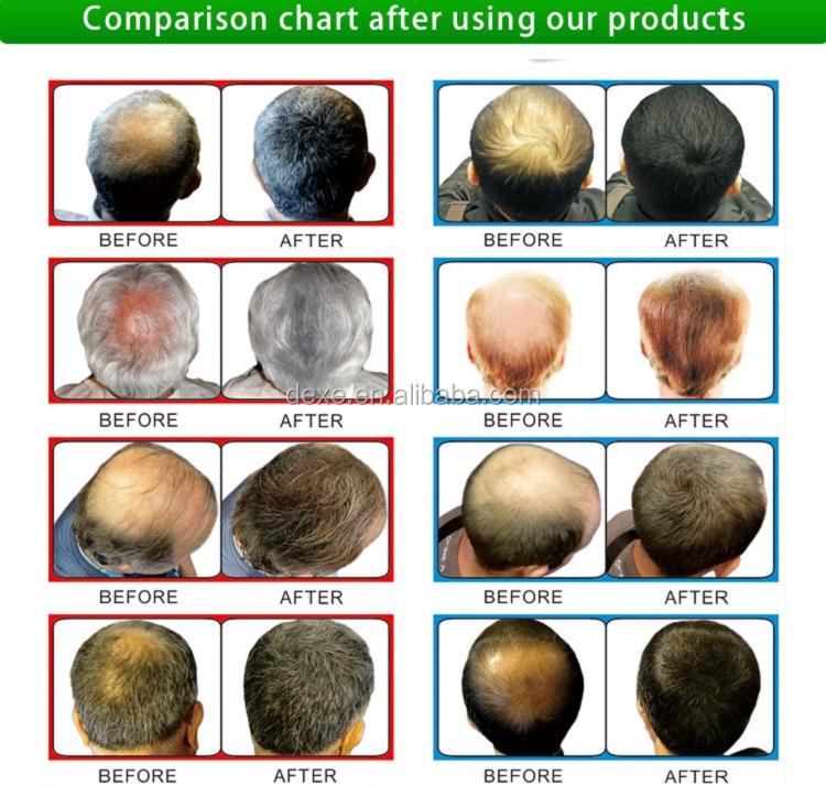 Perdita di capelli a base di erbe