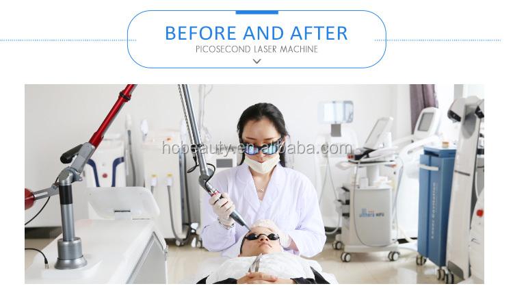顔料にきび picosecond レーザー刺青除去機