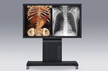 2233 (JUSHA-SUPER65T,) 65 inch professionele monitor, tandheelkundige digitale <span class=keywords><strong>x</strong></span> <span class=keywords><strong>ray</strong></span> scanner, cr systeem