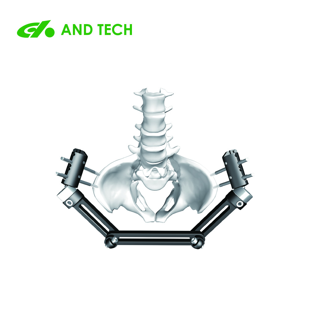 Orthopedic Pelvic external fixator
