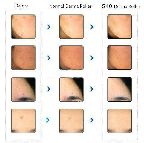 2015 Hot sale!!! NL-DRS540 Direct Wholesa Dermaroller 540 Titanium Needles ZGTS/MT derma roller (CE)