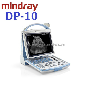 Goedkoopste Mindray DP10 BW draagbare ultrasound machine, Mindray goedkoopste ultrasound