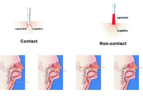gigaa laser ent ile ilgili görsel sonucu