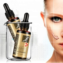 2018 Strongly desalination scar skin care lavender repair essential Oil
