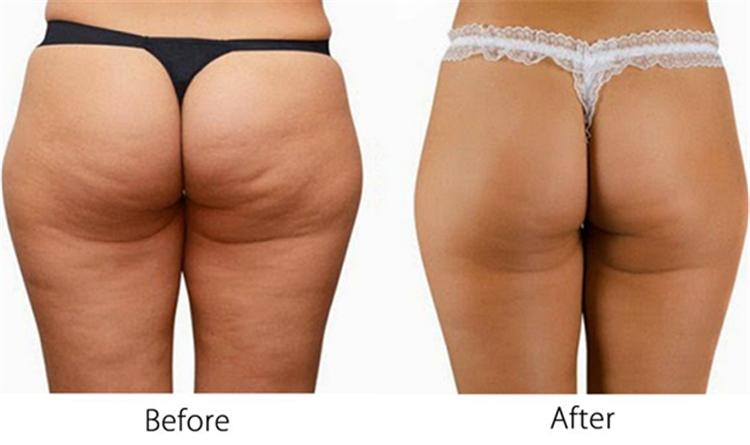 OEM ODM Celulite Firming Creme Melhor Emagrecimento Creme de Pimentão Quente Sexy Quente Emagrecimento Creme Para o Corpo Para A Menina de Beleza