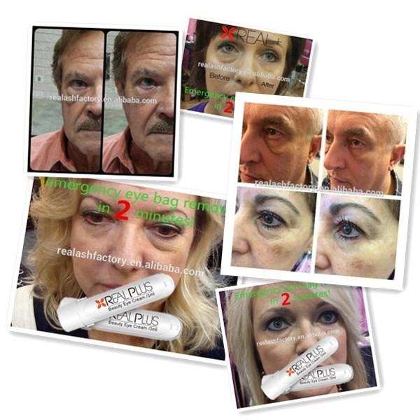 Korean Anti Wrinkle Cream Propylene Glycol Anti Aging Eye Cream ...