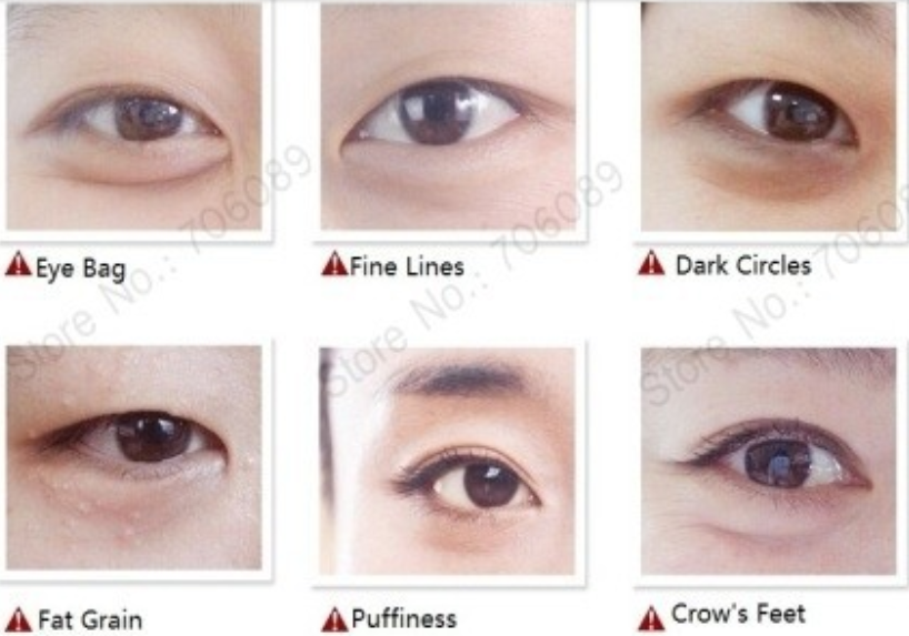 Hotsale Best Skin Care Anti Wrinkle And Anti Dark Circle Crystal ...