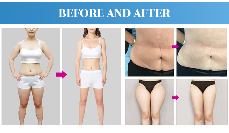 body slimming system