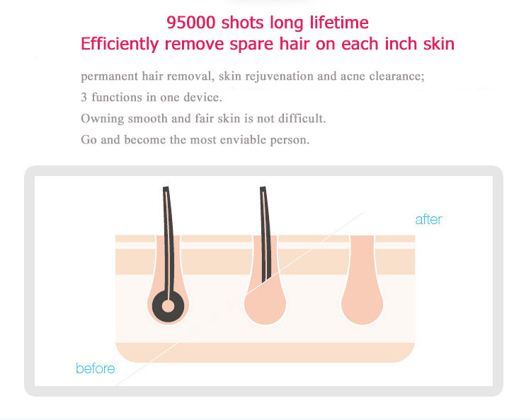 DEESS ipl shr hair removal machine permanent hair removal by laser acne treatment machine