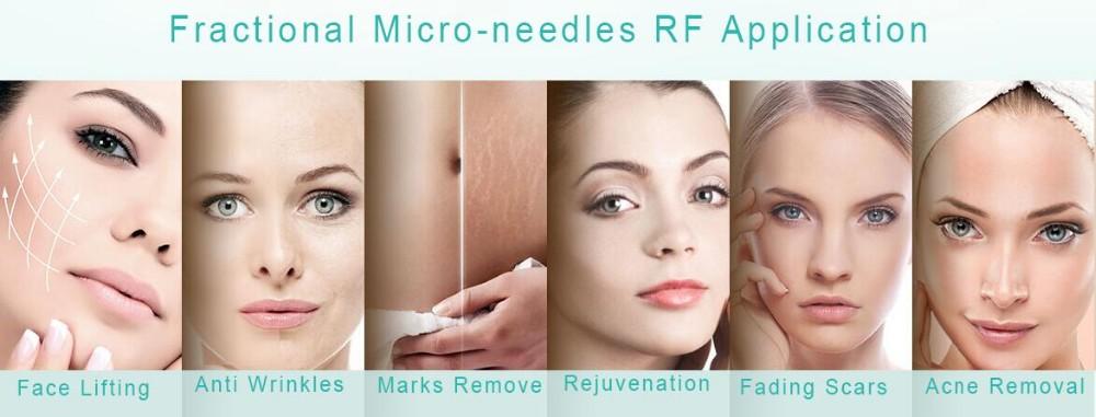 RF Microneedle/RF Face Lifting Machine/RF Fractional