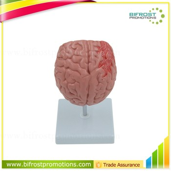 Organs Human Body Anatomy Brain Model Of Stroke