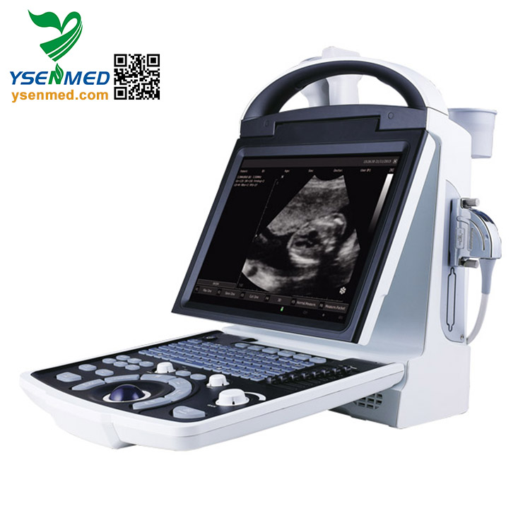 YSB5533 Good Quality Medical Digital B Mode Laptop Echo Ultrasound Scanner B/W Portable Ultrasound Machine