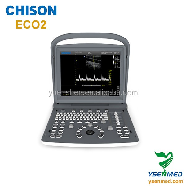 Chison eco2 laptop portable cheap ultrasound machine price