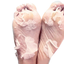 Maska na nohy, která odstraní odumřelou kůži na nohou 4 ks z Aliexpress