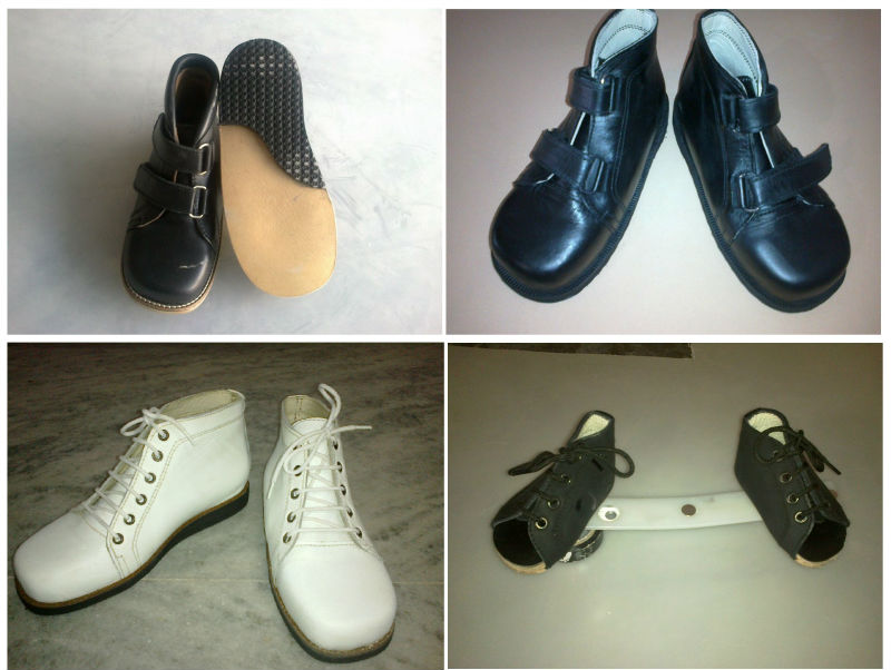 Shoes For Clubfoot Kids   Kids Matttroy  Shoes For Clubf...