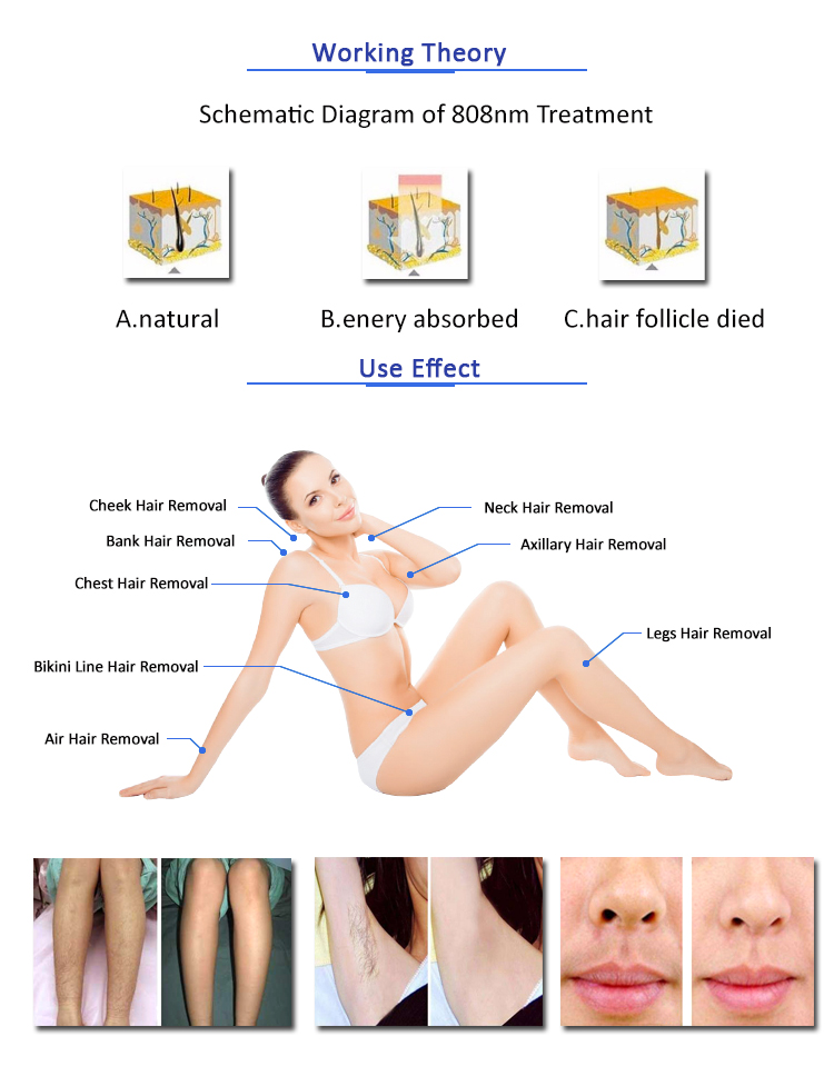 808nm Diode laser hair removal/ 808nm Diode laser Depilation/808nm