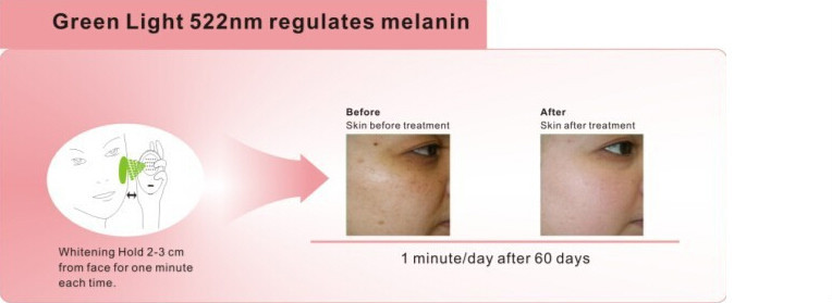 Hot Sale Led Light Acne Treatment Facial Multifunction Beauty ...