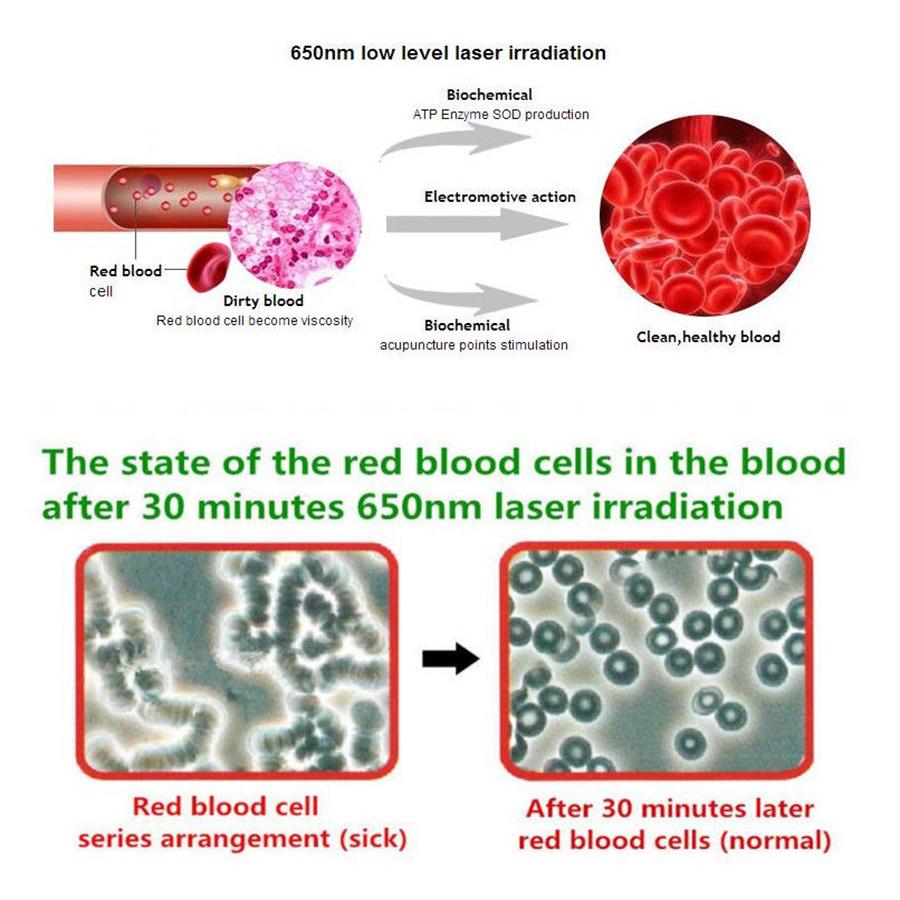 ทินนี่ Menieres Syndrome ทางกายภาพเลเซอร์ฝังเข็มจมูกเลือด Purify Therapy อุปกรณ์เดิม