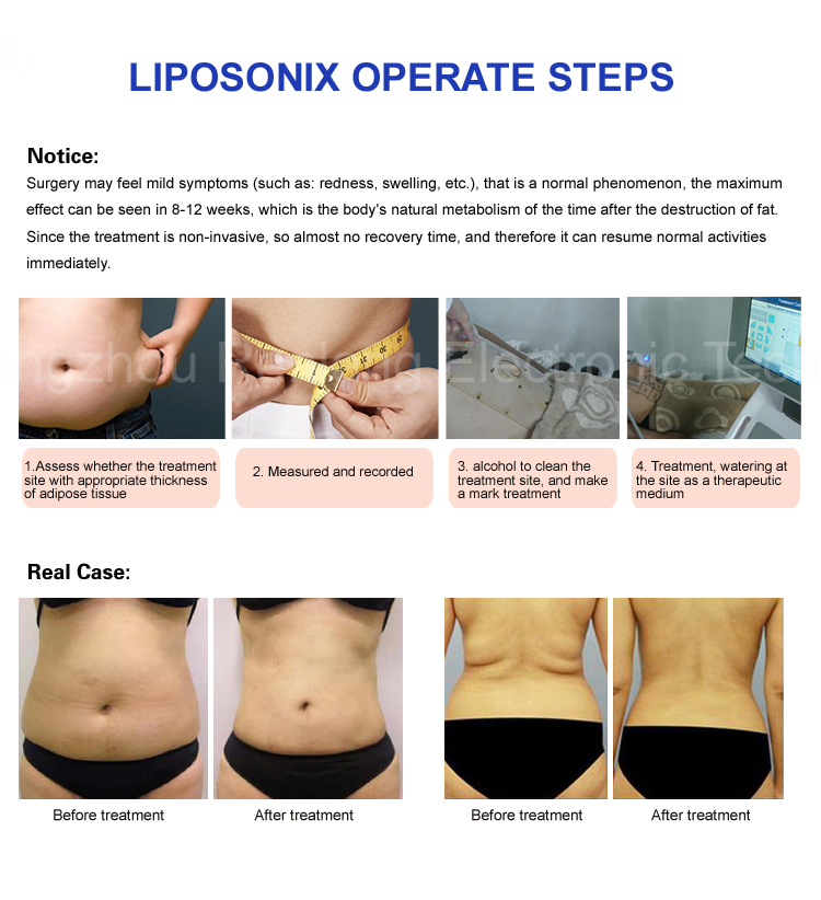 liposonix machine for sale
