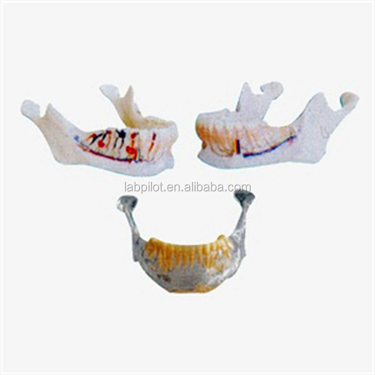 Anatomical Mandibular Modelteeth Model Of Lower Jawbone Buy