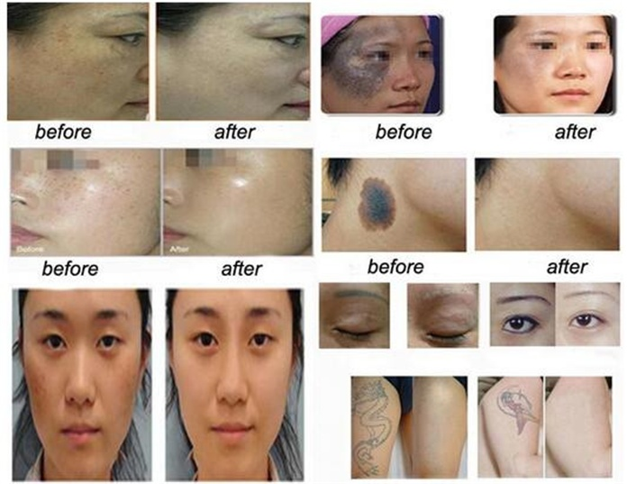 Tattoo removal Picosecond  Laser with 532nm 755nm 1064nm  585nm 650nm for Pigmentation