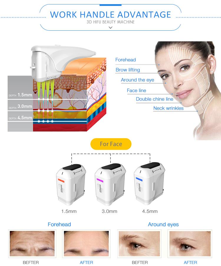 Élimination des rides du visage et corps machine de beauté anti-rides 11 lignes 3d hifu
