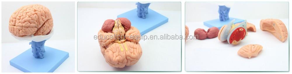 Se323195 Diencéfalo Cerebelosa Hemisferio Cerebral Ventrículo Modelo ...