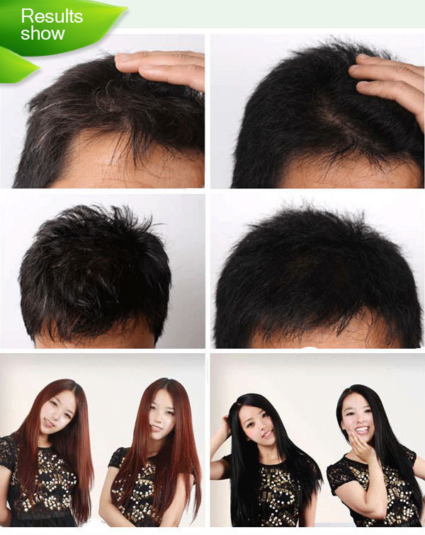 Black Hair Shampoo India Dexe Best Black Hair Dye Shampoo For Men ...