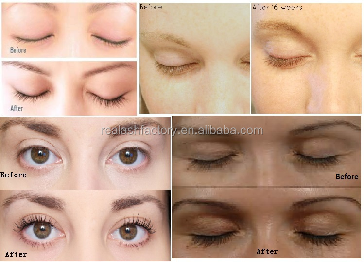 Get Chance For Longer Lashes 1-3mm Longer In 3 Days Real Plus ...