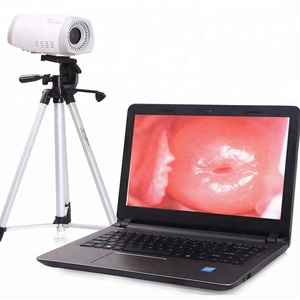 Portable Electronic Digital Video ccd Camera Colposcope Price For Gynecology