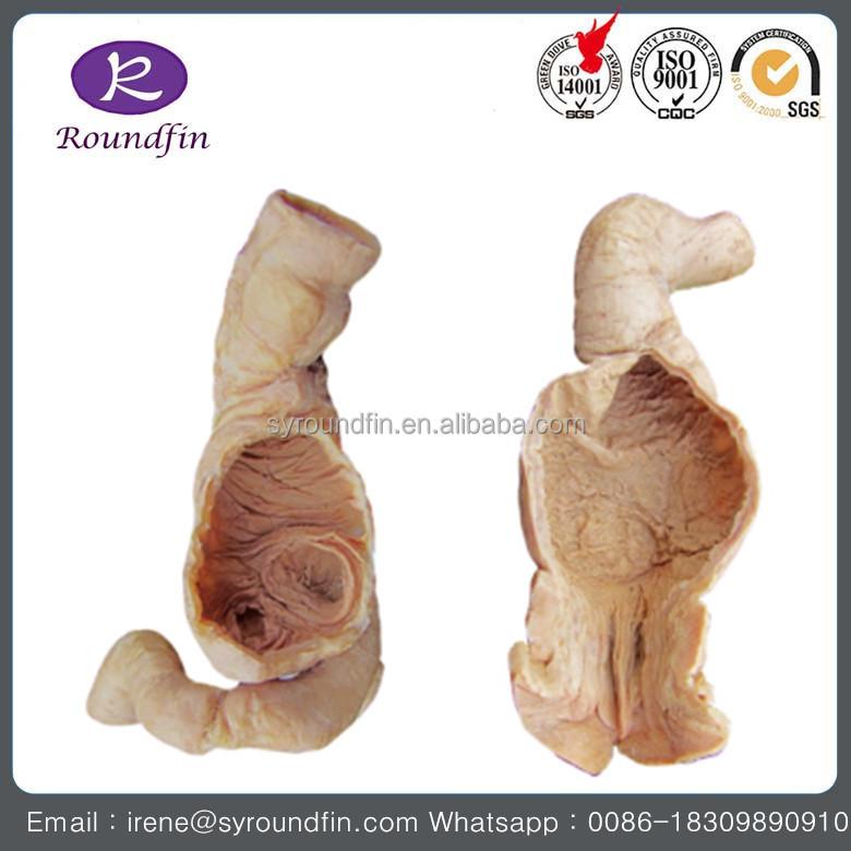Human Spleen Anatomical Model, Human Spleen Anatomical Model ...