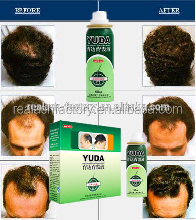 Herbal Extract Yuda Hair Loss Products/facial Hair Growth Cream ...